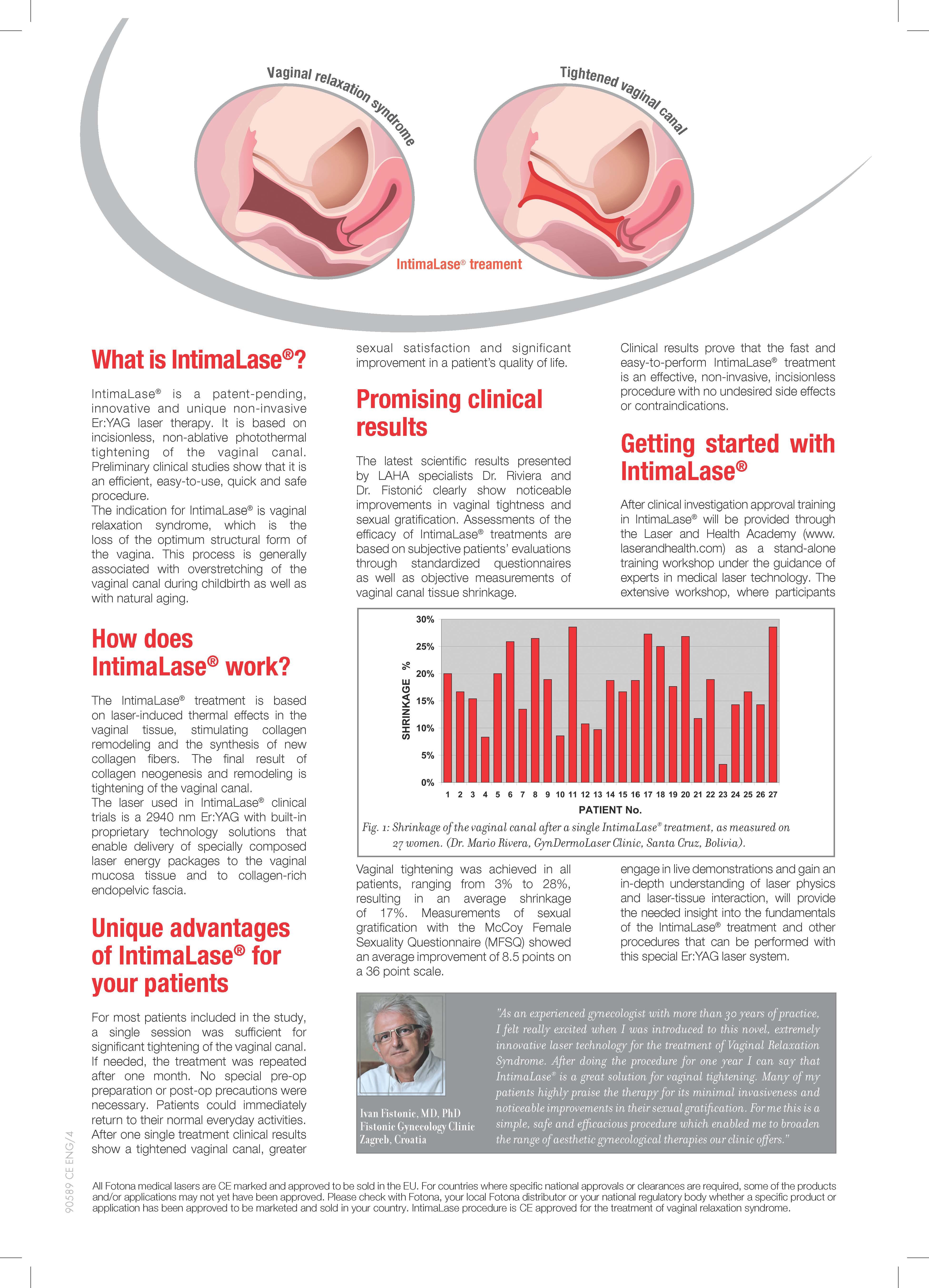 Vaginal tightening surgery in chennai